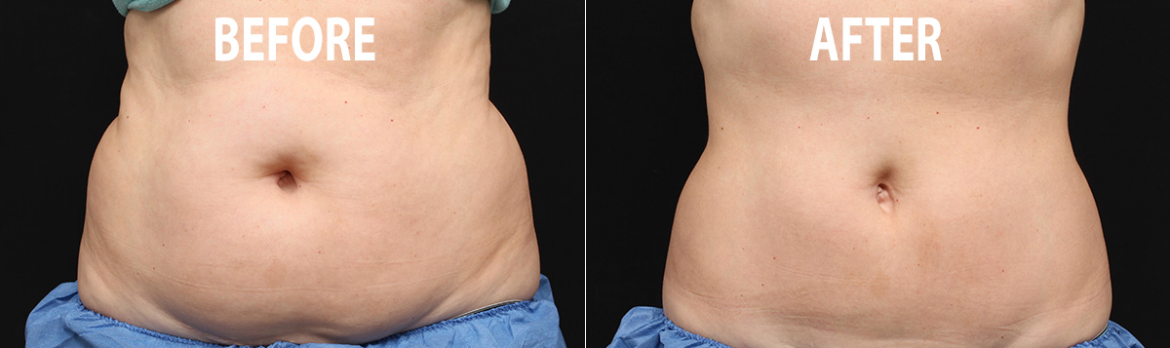 before-after-fat-freezing-teatment.jpg